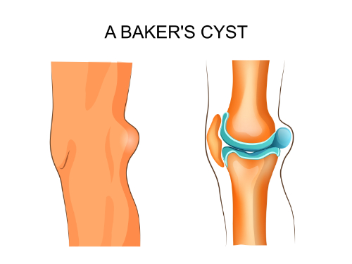 baker's cyst and chiropractic