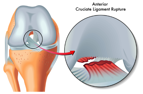 acl injuries and chiropractic