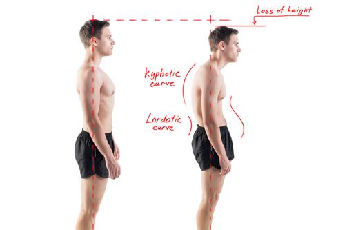 chiropractic poor posture