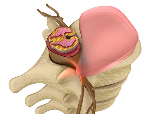 chiropractic bulging disc