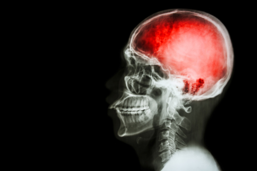 mild traumatic brain injuries and chiropractic