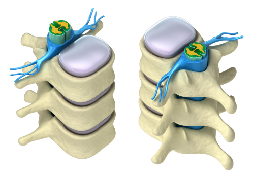 spinal hydration