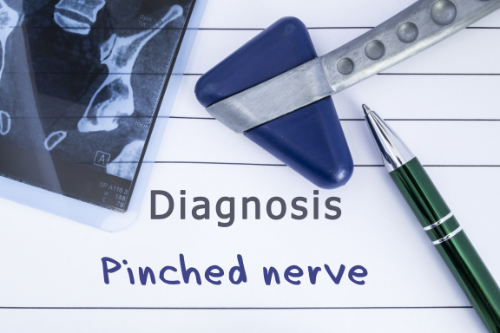pinched nerve and chiropractic