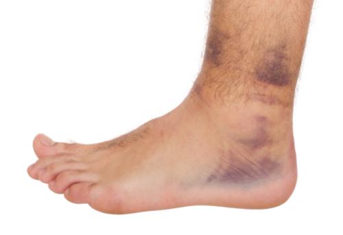 sprain strain