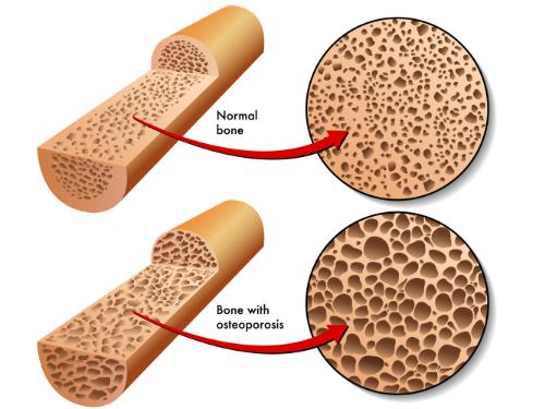 osteopenia osteoporosis