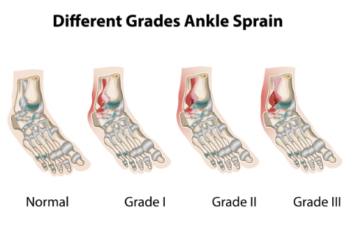 ankle sprain and chiropractic