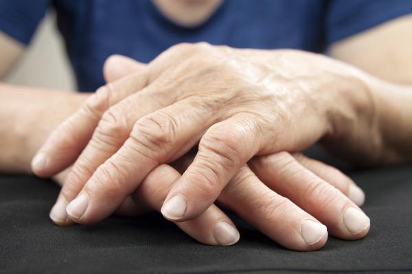 rheumatoid arthritis and chiropractic