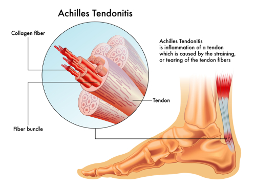 achilles tendonitis and chiropractic